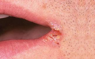 Болячка под нижней губой - ПрофиМед