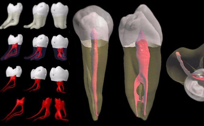 Удаление зубного нерва: как и в каких случаях удаляют, последствия