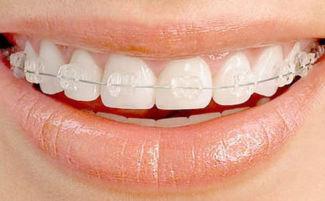 Металлические брекеты как крепятся к зубам