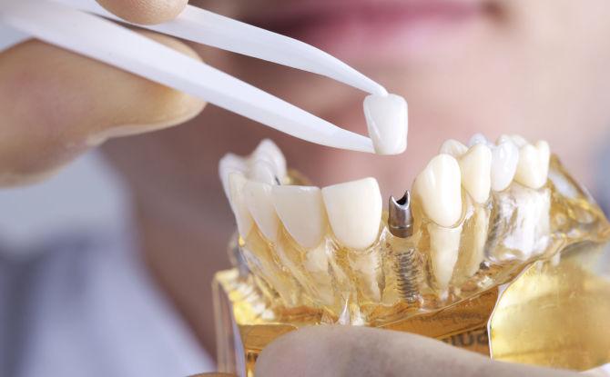 Выбор зубных протезов при частичном отсутствии зубов: виды, какие лучше