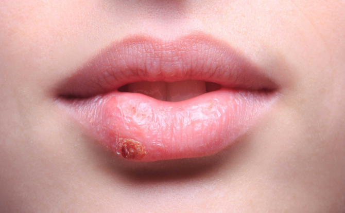 Болезни губ у взрослых и детей: названия с фото, причины, симптомы и лечение