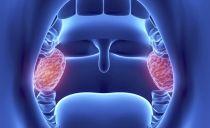 Гланды и миндалины в горле: расположение, функции, причины воспаления и методы лечения