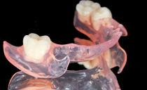 Зубные протезы нового поколения без неба при полном и частичном отсутствии зубов