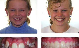 """Скобы на зубы для детей и взрослых: фото """"до и после"""", сколько стоят зубные скобы"""
