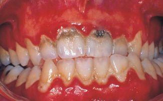Клиновидный дефект зубов лечение в домашних условиях