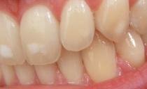 Белые пятна на зубах у взрослых и детей: почему появляются и как избавиться