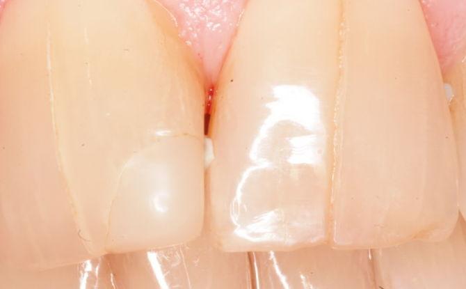 Трещины на зубной эмали: причины, симптомы и лечение