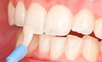 Восстановление эмали зубов: в стоматологии, в домашних условиях