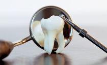 Дистопированные и ретинированные зубы: сущность патологии, удаление