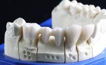 Виды и стоимость вставных зубов, какие лучше, как сэкономить
