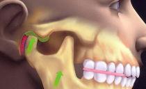 Вывих нижней челюсти: симптомы, лечение, как вправить челюсть в домашних условиях