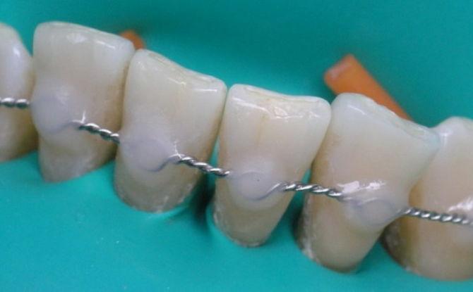 Шинирование подвижных зубов в стоматологии: что это, методы при пародонтозе и пародонтите