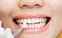 Что такое виниры на зубы: виды, преимущества и недостатки