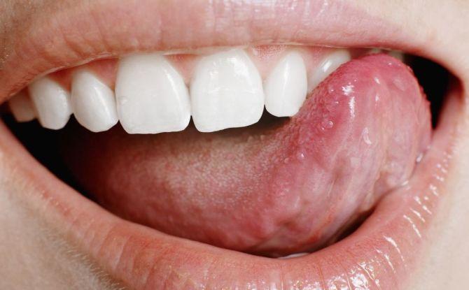 Типун на языке: причины возникновения и лечение