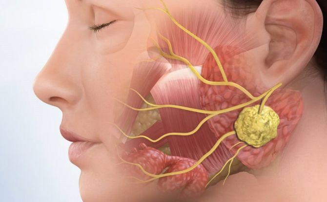 Слюннокаменная болезнь: причины, симптомы, последствия и лечение