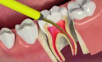 Пульпит зуба: как вылечить, методы и этапы лечения, осложнения, профилактика