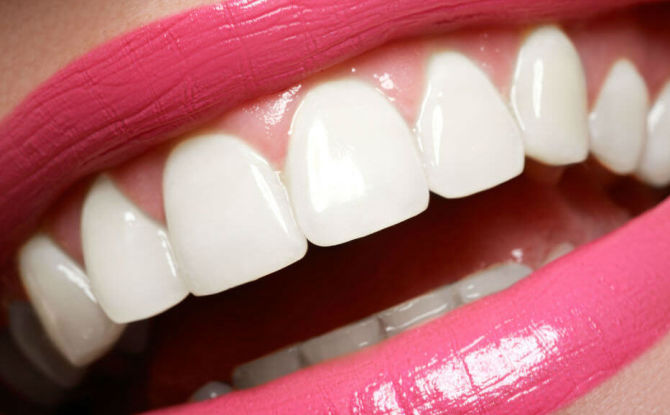 Как сделать зубы белыми в домашних условиях и в клинике, как сохранить белизну зубов