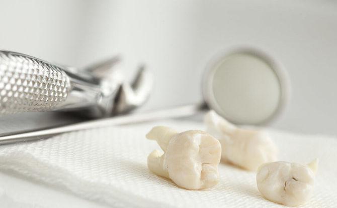 Кровотечение после удаления зуба: причины, как остановить в домашних условиях