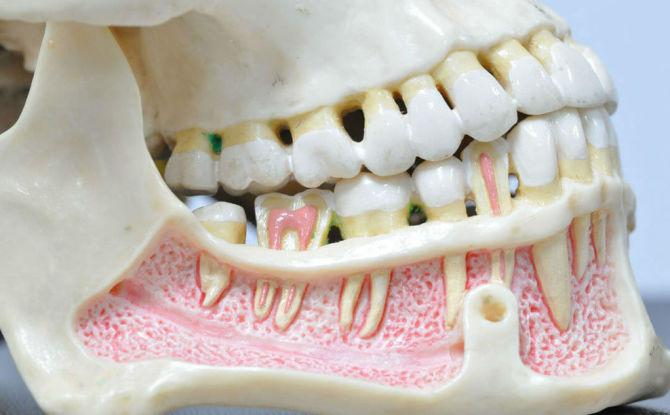 Остеомиелит нижней и верхней челюсти: причины, симптомы и лечение