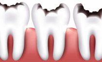 Классификация кариеса зубов по Блэку и по системе ВОЗ, особенности препарирования кариозных полостей