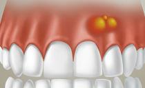 Почему образуется шишка на десне и как от нее избавиться