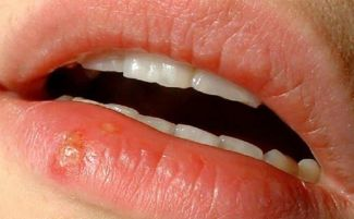 Гнойник во рту на губе