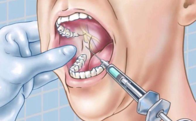 Проводниковая анестезия в стоматологии — что это, виды