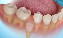 Регенерация новых молодых зубов у человека: технологии и практика