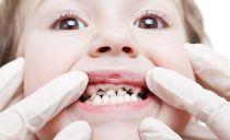 Серебрение зубов у детей: зачем нужно, показания, методы серебрения молочных зубов