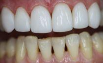 Методы и этапы художественной и эстетической реставрации передних зубов