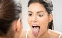 Глоссит языка: виды, причины, лечение
