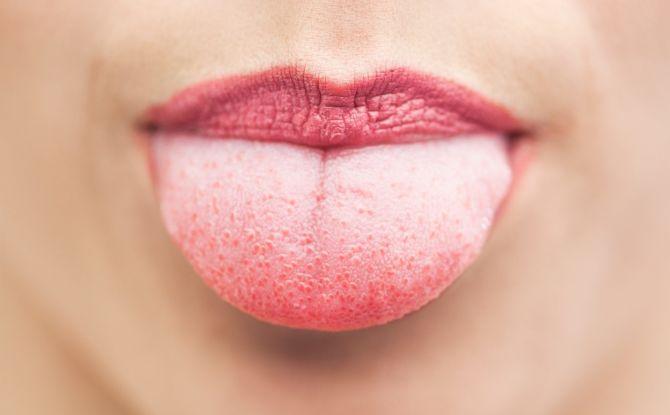 Красные пупырышки на языке: насколько это опасно и как это вылечить