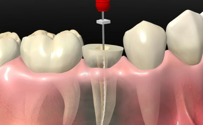 Что такое депульпирование зуба, методы депульпация при протезировании