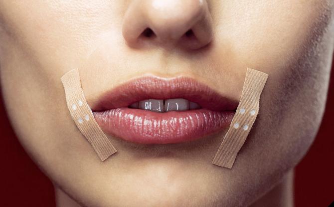 Трещины в уголках губ: причины возникновения, медикаментозные и народные средства лечения