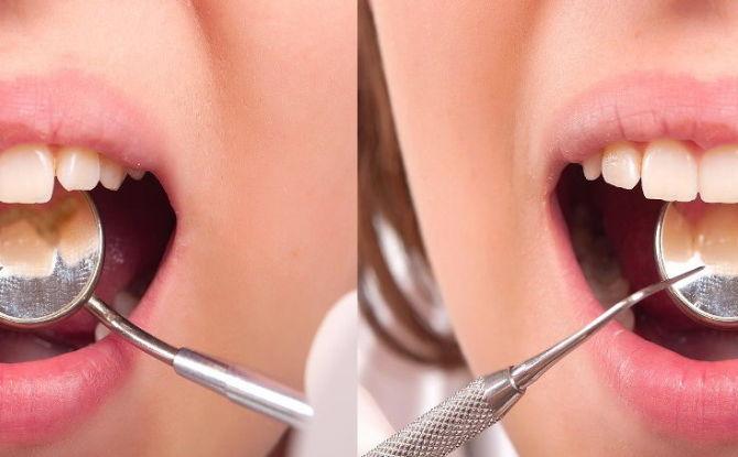 Зубной камень: что это такое, причины, как бороться