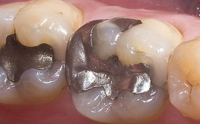 Сколько нельзя есть после пломбирования зуба и почему