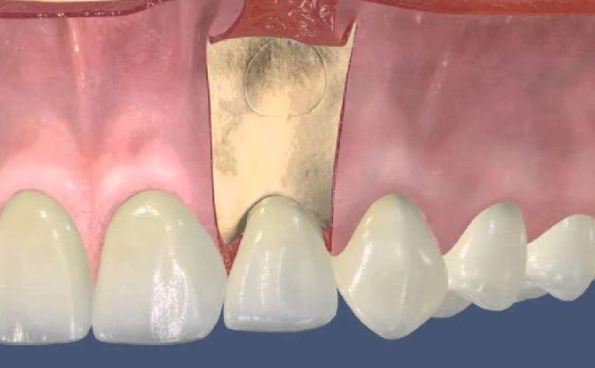 Резекция верхушки корня зуба: суть и этапы операции, восстановление после операции