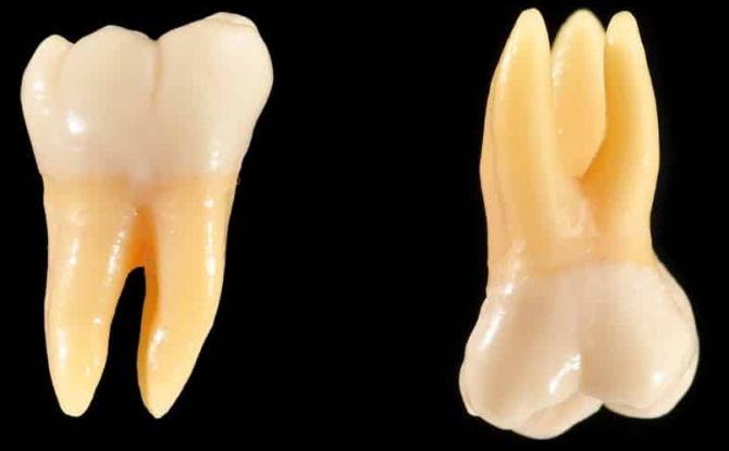 Какие зубы называют молярами и премолярами, анатомические особенности
