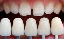 Сколько стоит сделать и поставить виниры на передние зубы в стоматологии