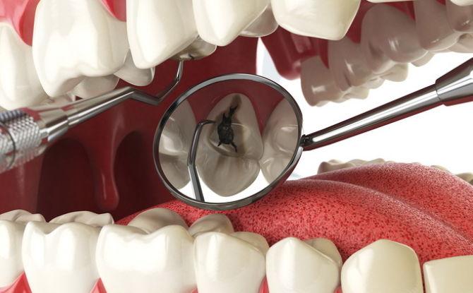 Признаки, симптомы и лечение пульпита зуба