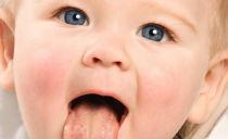 Лечение стоматита у детей до года и старше в домашних условиях