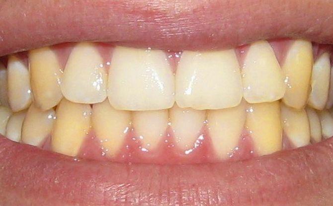 Желтые зубы у взрослых и у детей: причины, методы отбеливания, фото