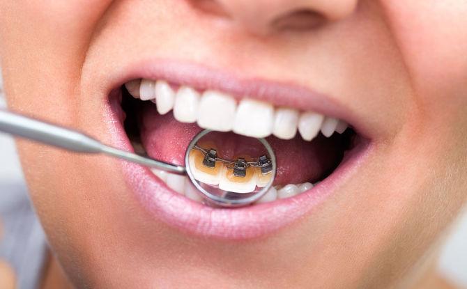 Как ставят брекеты на зубы: виды, сроки ношения и установки