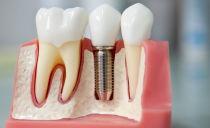 Зубные имплантанты: виды, стоимость и установка
