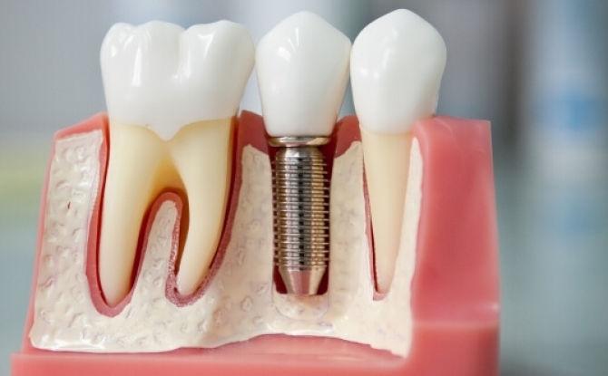 Виниры на зубы виды и стоимость
