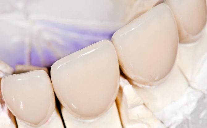 Коронки на передние зубы: виды, как делают и устанавливают, сколько стоят