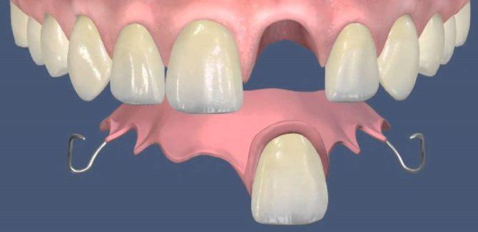 Акриловый протез на один зуб