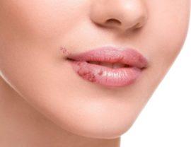 Как лечить хейлит на губах взрослых и детей