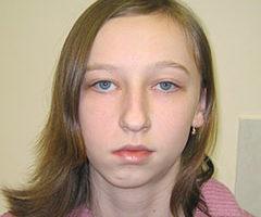 Ассиметрия челюсти после перелома