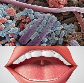 Бактерии стоматита